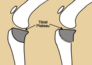 Tibial Plateau Leveling Osteotomy (or TPLO) Surgery