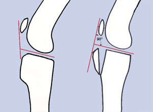 Tibial Tuberosity Advancement